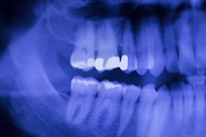 Dental teeth fillings